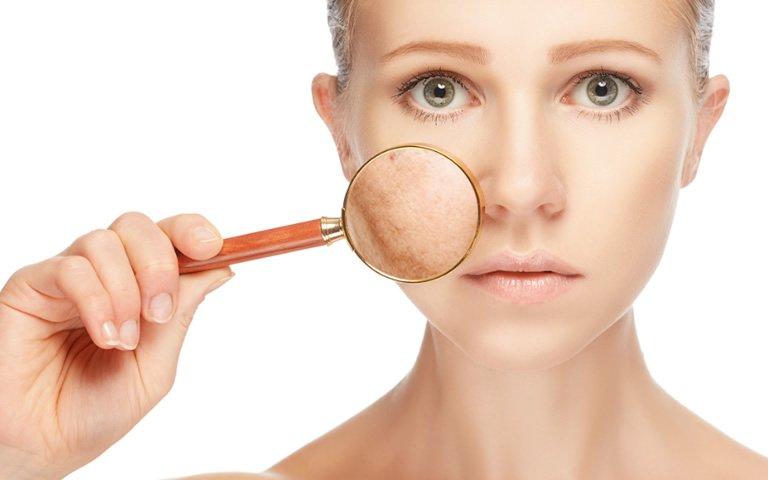 Dra. Fernanda Trindade - Dermatologista em BH | Clínica de Dermatologia em Belo Horizonte - Tratamento de Cicatrizes e Manchas de Acne -  Tratamento para Cicatriz de Acne -