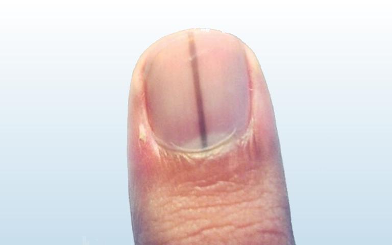 Dermatologista Dra. Fernanda Trindade | Manchas escuras nas unhas: Podem ser Câncer de Pele?
